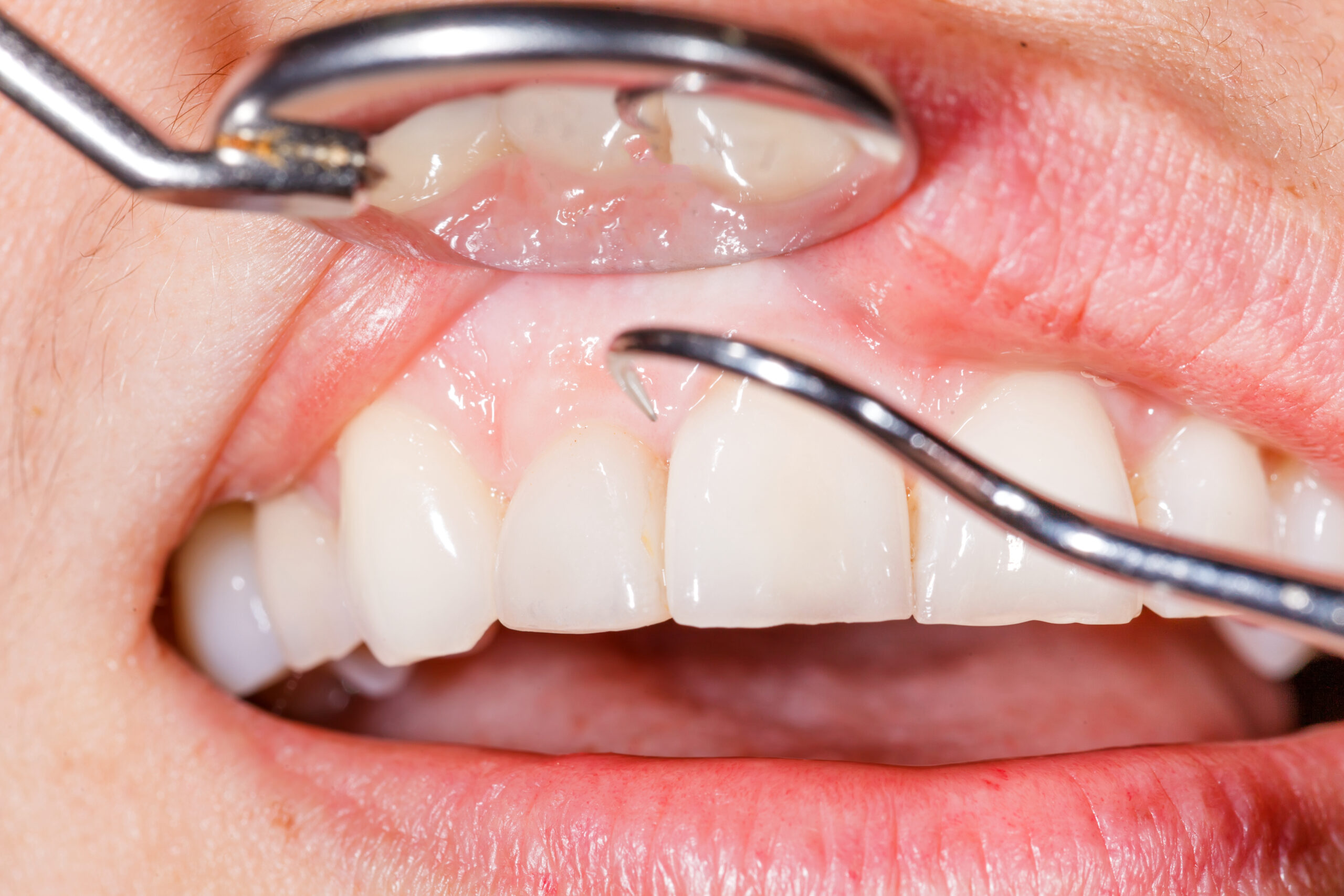 Dentist examining Periodontal disease