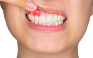 person lifting lip to reveal red diseased gum