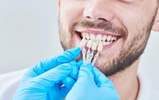 veneer colors held up to patients teeth